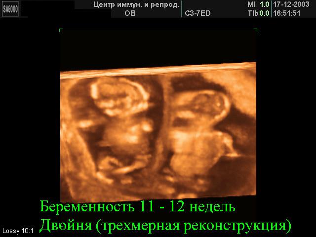 Узи двойни на 3 неделе беременности