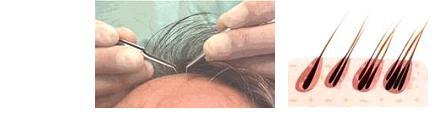 Comme traiter les cheveux fragiles après osvetleniya