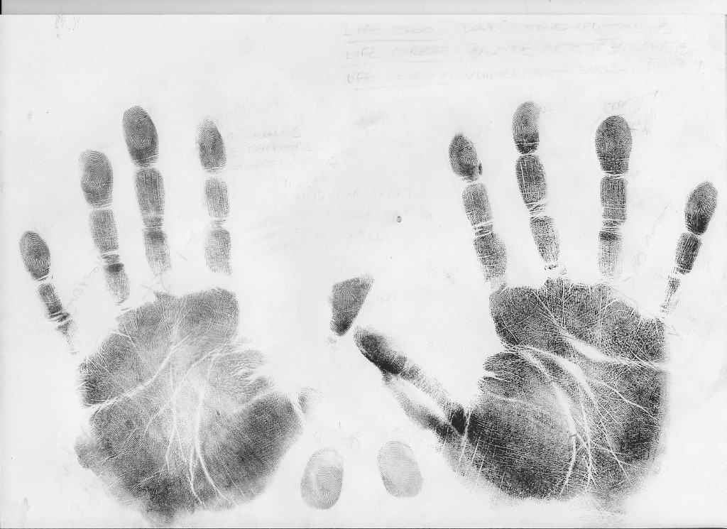 Schizophrenia & the hand: case 3.