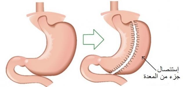 تكميم المعدة وشفط الدهون تركيا