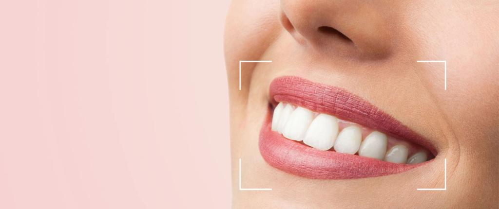 علاج الاسنان بدون نهائيا dsd-sl10.jpg