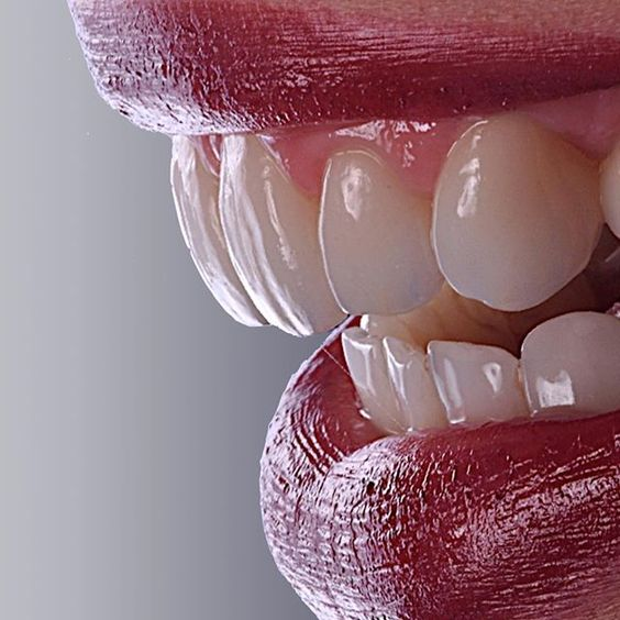 علاج الاسنان بدون نهائيا f12eac10.jpg